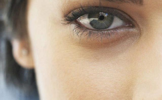 Синці під очима: як лікувати