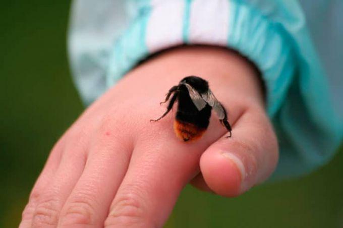 Що робити, якщо дитину вкусила бджола або оса