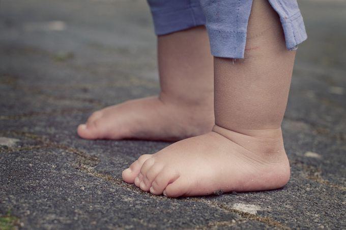 Профілактика плоскостопості у дітей дошкільного віку
