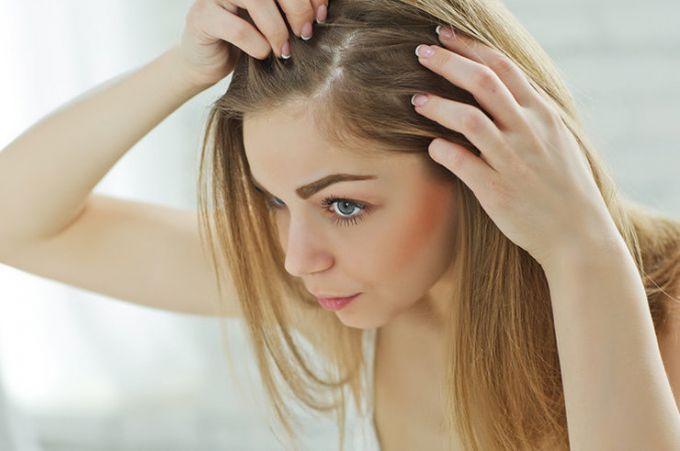 Коли сильно випадає волосся
