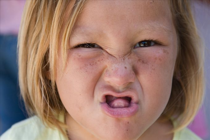 Родимки у дітей: яка їх норма і як за ними правильно доглядати
