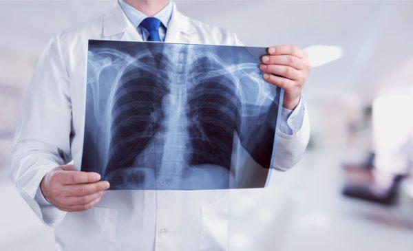Забудь про флюорографію. Як діагностувати туберкульоз?