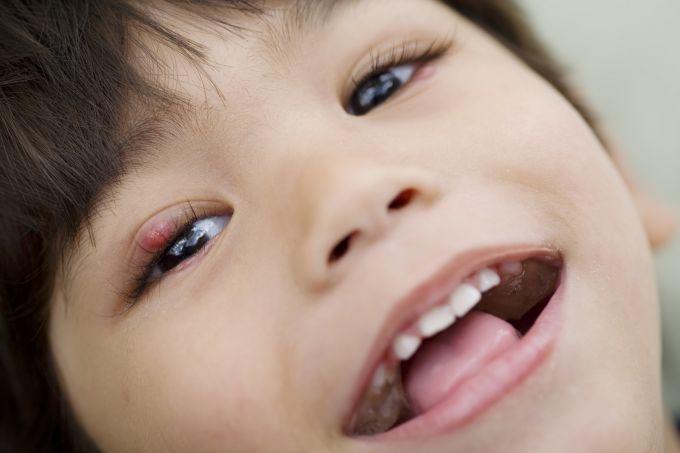 Ячмінь на оці у дітей лікується вітамінами