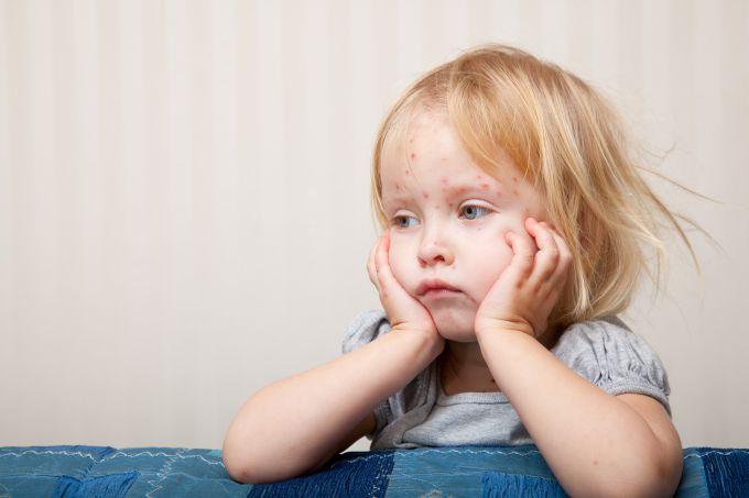 Як прискорити одужання дітей при краснусі