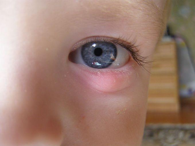 Кон'юнктивіт у дітей: як лікувати домашніми засобами