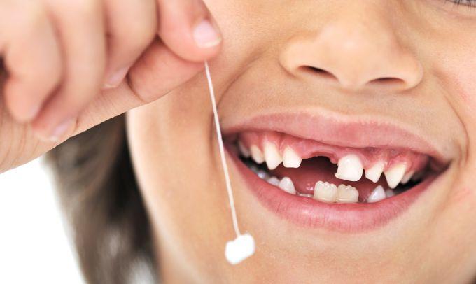 Молочні зуби у дітей. Що Ви повинні знати
